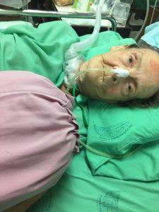 Phuket: Britin kämpft wegen eines Verkehrsunfalles um ihr Leben  Phuket: Britin kämpft wegen eines Verkehrsunfalles um ihr Leben