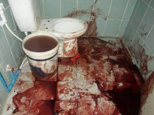 Pattaya: Ire schnitt sich die Pulsadern auf und richtete dabei ein Blutbad an